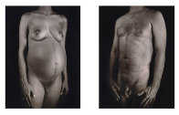 Untitled from Doctors of the World portfolio 2001 Limited Edition Print by Chuck Close - 0