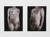 Untitled - Man / Woman (From Doctors of the World [Medecins Sans Frontieres] Portfolio 200 Limited Edition Print by Chuck Close - 1