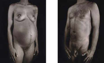 Untitled - Man / Woman (From Doctors of the World [Medecins Sans Frontieres] Portfolio 200 Limited Edition Print by Chuck Close